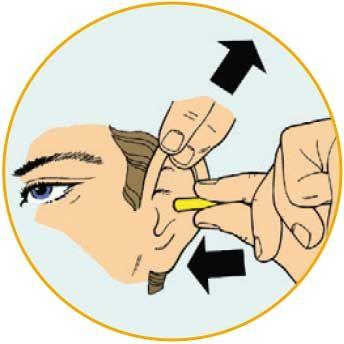 cách sử dụng nút tai chống ồn